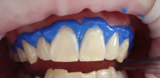 professional dental whitening