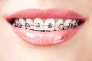 braces 2