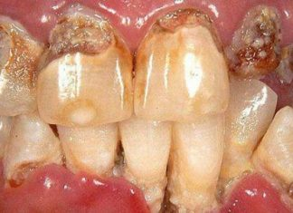 How Illegal Drugs Use Affect Your Teeth