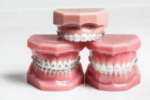 braces 3